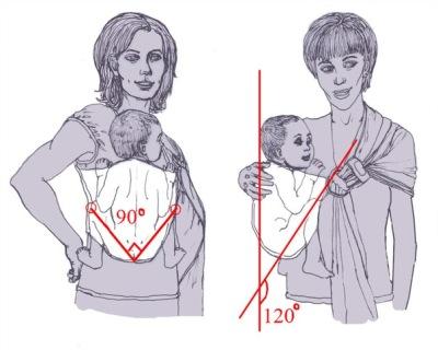 Дисплазия тазобедренных суставов у детей форум украина наросты на суставах у собак фото